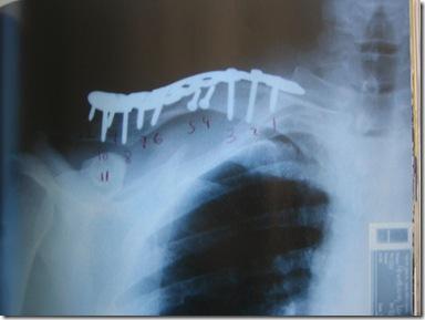Metal collarbone